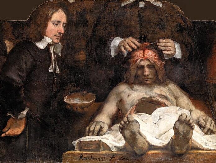 lezione di anatomia del dottor deyman