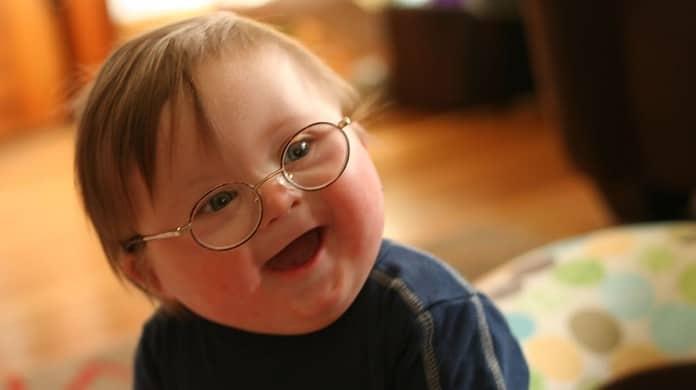 la sindrome di Down: genetico non vuol dire ereditario